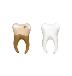 healthy bright human tooth and old dirty tooth vector image