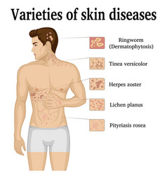 Varieties of skin diseases vector