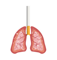 smokers lungs cancer from cigarettes in detail a vector image
