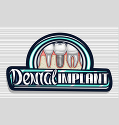 Logo for dental implant clinic vector