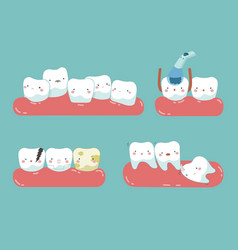 Check up decayed tooth wisdom tooth dental se vector