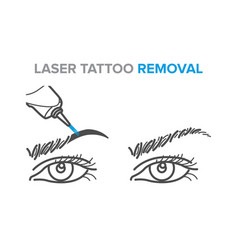 Eyebrow removal procedure laser tattoo removal vector