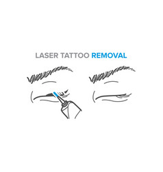 Eyeliner removal procedure laser tattoo removal vector