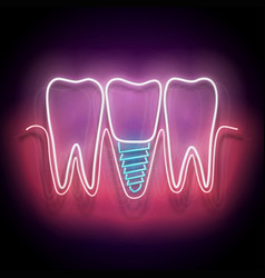 glow dentition with implanted tooth vector image