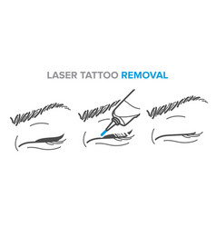 Laser tattoo removal permanent makeup removal vector