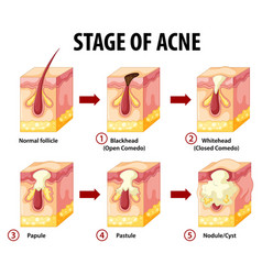 Stages skin acne anatomy vector