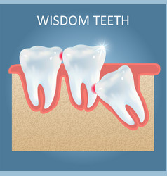 Wisdom teeth problems poster design vector