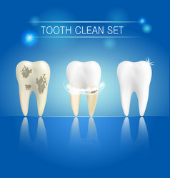 set of clean and dirty tooth on blue background vector image vector image