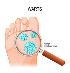foot warts close-up of hpv vector image