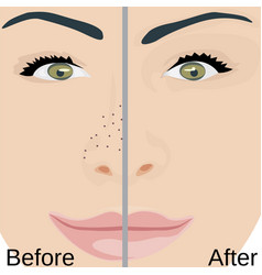 Blackheads remove on nose treatment vector