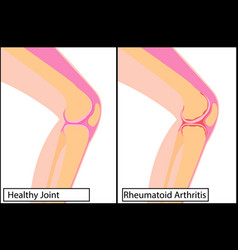 Healthy knee joint and rheumatoid arthritis vector