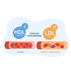 Types cholesterol in blood concept vector