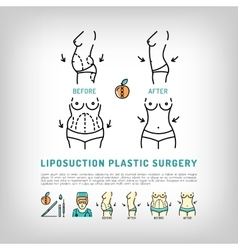 Liposuction Body Plastic Surgery thin line art vector image
