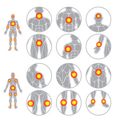 Human body pain points muscles set vector