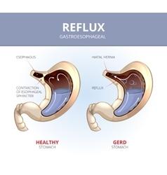 Gastroesophageal reflux disease Healthy and sick vector image vector image