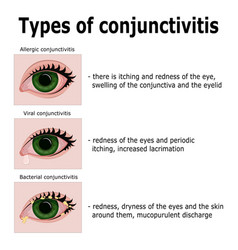 types of conjunctivitis vector image