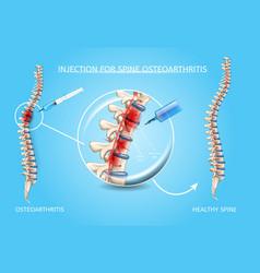 Spine osteoarthritis medical treatment vector