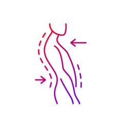 Swayback posture gradient linear icon vector