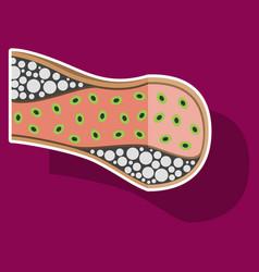 Sticker vienna human atherosclerosisthe structure vector