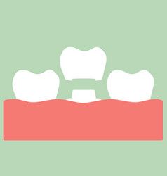 Dental crown - change of teeth vector