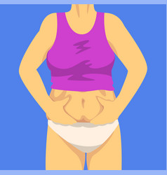 Part female body woman clamping fold belly vector