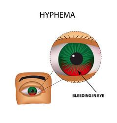 Hyphema anterior eye hemorrhage structure eye vector