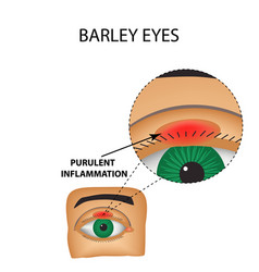 Barley eyes purulent inflammation structure eye vector