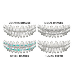 Braces set different types human jaw vector