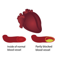 Healthy and blocked blood vessels vector