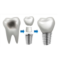 dental implant tooth with caries health vector image