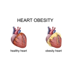 Obesity heart vector