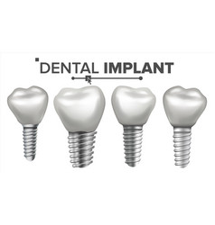 Dental implant set implant structure vector