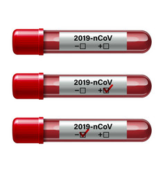 Set test tube with blood sample for covid-19 vector