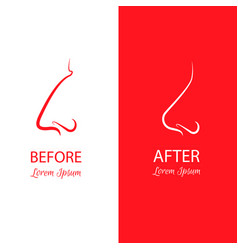Nose reshaping before and after surgery abstract vector
