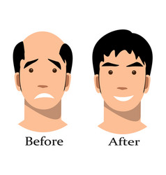 male baldness pattern stages set vector image