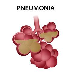 Pneumonia alveoli icon realistic style vector