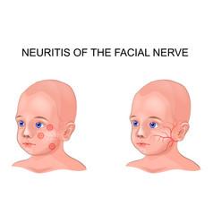 Facial nerve neuritis in a child vector