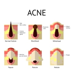 Types acne pimples healthy skin whiteheads vector