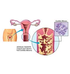 Vaginitis a prostatitis miatt)