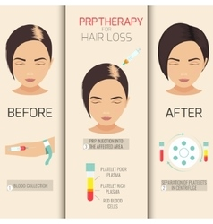 PRP therapy for hair loss vector image vector image