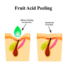 Inflamed acne on skin pimple acne vector