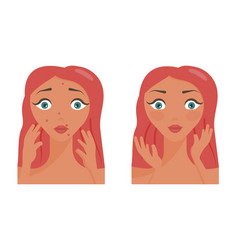 poster of acne pimples vector image