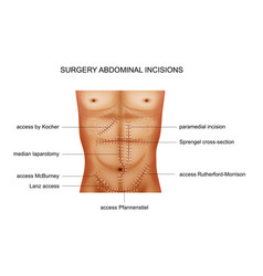 Surgical incisions of the abdominal cavity vector