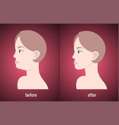 Woman face before and after double chin fat vector