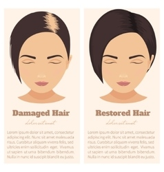 Hair loss in women vector image