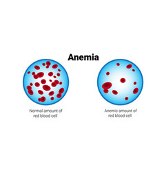 Normal and anemia amount red blood cells vector