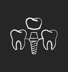 Dental implants procedure chalk white icon on vector