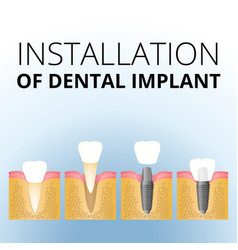 Implantation of the tooth vector