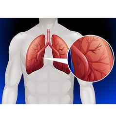 Lung cancer in human body vector image vector image