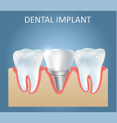 Dental implant medical poster design vector